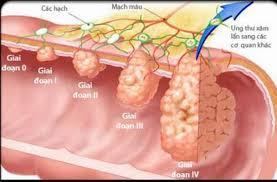 Bệnh Ung thư gan và dấu hiệu