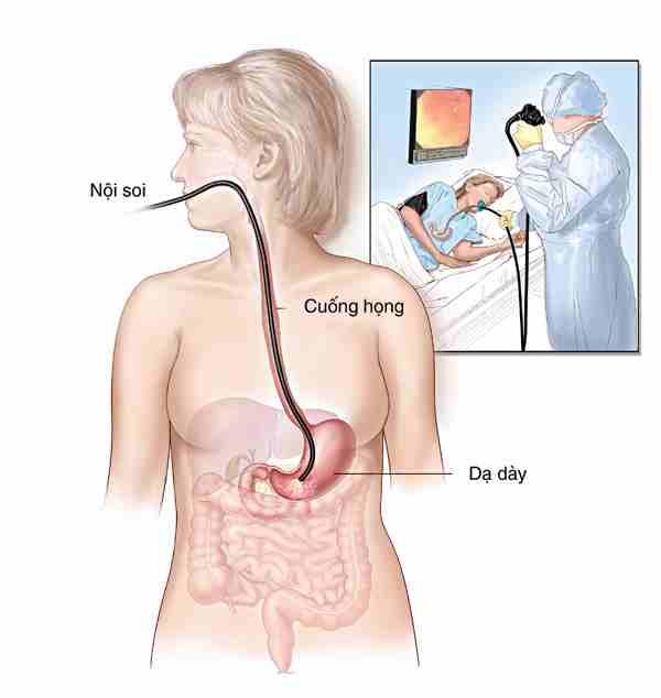 Cẩn thận khi bị polyp dạ dày