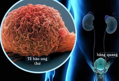 Làm thế nào để phát hiện sớm ung thư bàng quang?